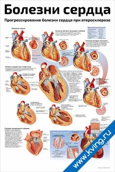 Плакат болезни сердца