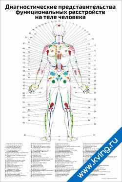 Плакат диагностические представительства функциональных расстройств на теле человека