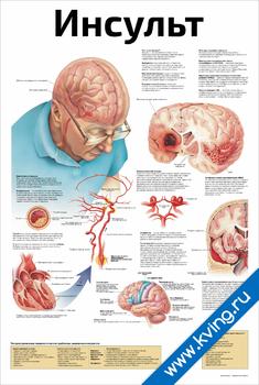 Плакат инсульт