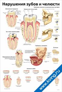 Плакат нарушения зубов и челюсти