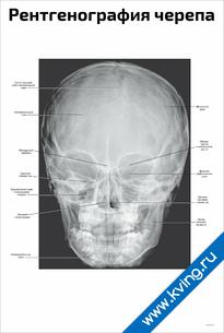 Плакат рентгенография черепа