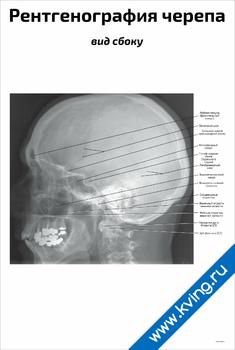 Плакат рентгенография черепа: вид сбоку