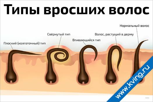 Плакат типы вросших волос