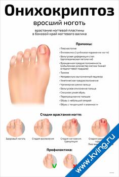 Плакат онихокриптоз: вросший ноготь